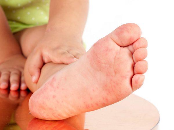 trẻ bị nổi mẩn đỏ ở chân và tay