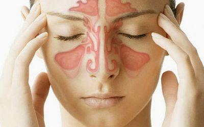 Dấu hiệu bệnh viêm xoang điển hình bạn cần lưu ý