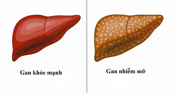 gan nhiễm mỡ 2