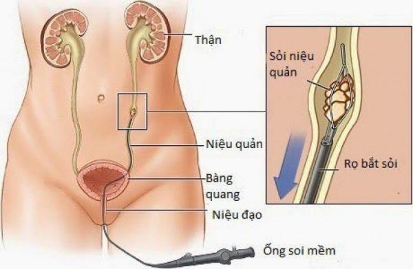 Phương pháp tán sỏi nội soi ngược dòng