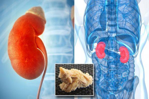 Sỏi thận hình thành từ sự lắng đọng muối và chất khoáng có trong nước tiểu, sỏi nằm lâu trong cơ thể sẽ gây ra nhiều ảnh hưởng tới sức khỏe (ảnh minh họa)