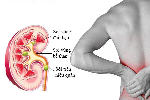 Tán sỏi qua da được chỉ định trong những trường hợp bệnh nhân có sỏi thận >2cm, sỏi niệu quản 1/3 trên và >1,5cm (ảnh minh họa)