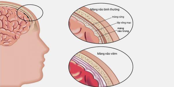 viêm màng não ở trẻ sơ sinh là gì