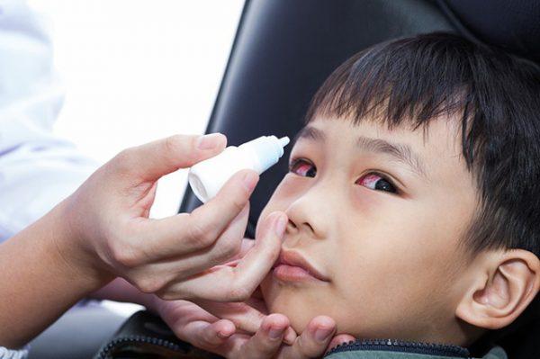 điều trị đau mắt đỏ ở trẻ em