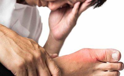 Đối tượng nào dễ mắc bệnh gout? Lời khuyên dành cho người bệnh gout