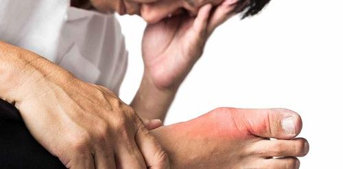 đối tượng dễ bị bệnh gout bệnh gút