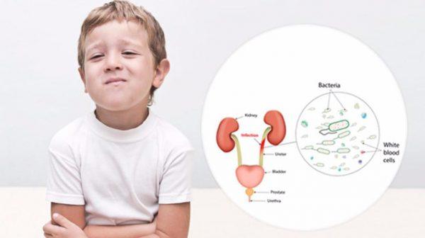 nguyên nhân gây viêm đường tiết niệu ở trẻ em