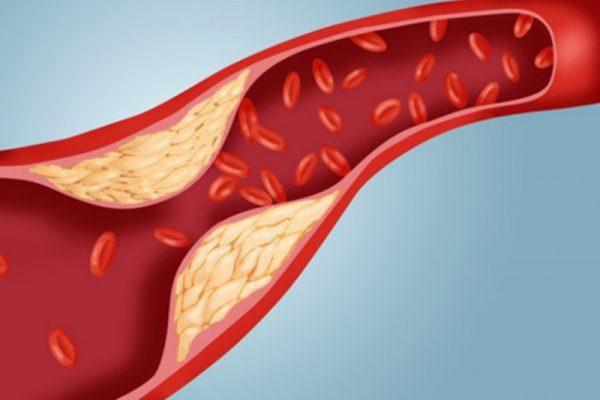 Máu nhiễm mỡ là tình trạng gia tăng đột biến của lượng mỡ trong máu