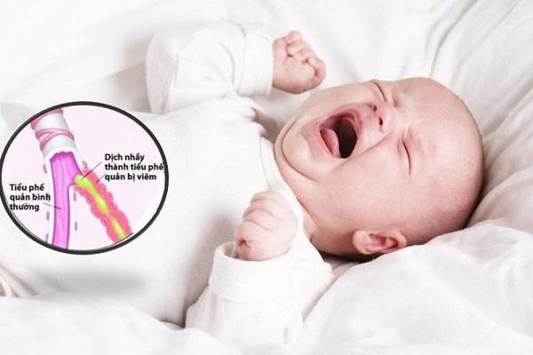 Các dấu hiệu trẻ bị viêm tiểu phế quản