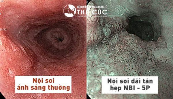 Công nghệ nội soi NBI 5P giúp đánh giá sâu dưới lớp niêm mạc dạ dày, đại tràng từ đó phát hiện các thương tổn nhỏ nhất, đồng thời phát hiện sớm các dấu hiệu ung thư đường tiêu hóa.