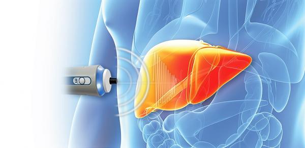 Là kỹ thuật hiện đại mang tính bước ngoặt, đo độ đàn hồi mô gan cho biết chính xác mức độ xơ hóa gan.