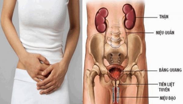 Nhiễm trùng huyết là biến chứng nặng mà người có thắc mắc liệu viêm đường tiết niệu có tự khỏi không cần biết.