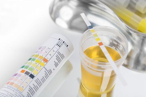 xét nghiệm nước tiểu ở trẻ em nhỏ