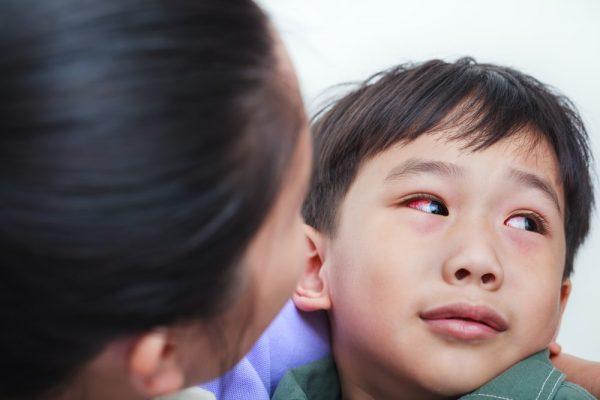 biểu hiện viêm nội nhãn ở trẻ em có thể nhận biết