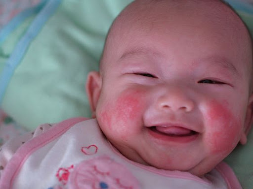 những bệnh lý thường gặp ở trẻ sơ sinh