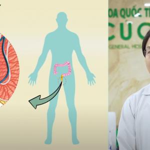 Bác sĩ giải đáp: Bệnh trĩ có tự khỏi được không?