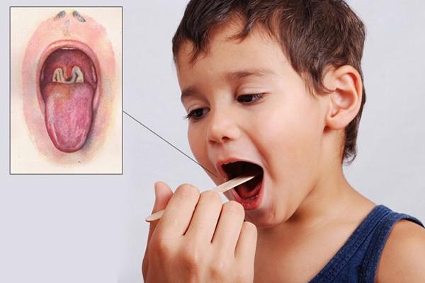 triệu chứng bệnh bạch hầu ở trẻ em