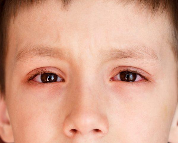 trẻ bị đau mắt đỏ do bơi tại hồ bơi