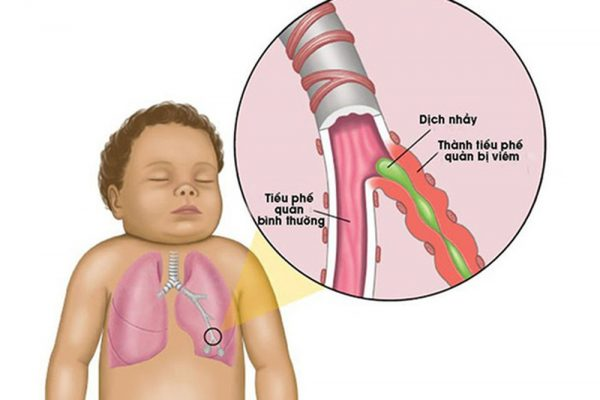 nguyên nhân khiến trẻ bị ho và lưu ý khi sử dụng thuốc chữa ho