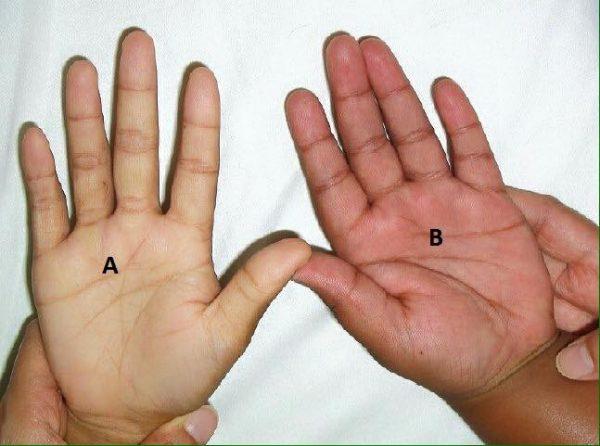 Lòng bàn tay nhợt nhạt là dấu hiệu của bệnh thiếu máu ở trẻ em.
