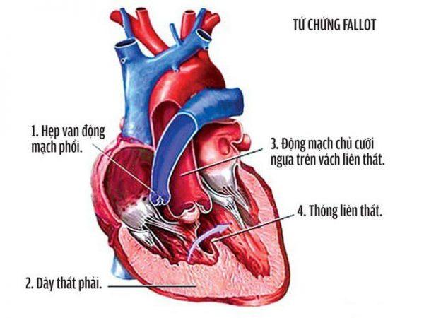 nhận biết bệnh tim bẩm sinh ở trẻ em