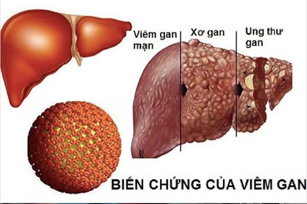Viêm gan B mạn tính rất dễ dẫn đến xơ gan và ung thư gan. 80% ca ung thư gan ở Việt Nam có nhiễm virus viêm gan B.