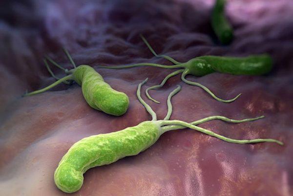 trẻ bị nhiễm vi khuẩn HP có nguy hiểm không