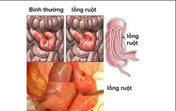 Hình ảnh minh hoạ lồng ruột bệnh tiêu hoá nguy hiểm ở trẻ em