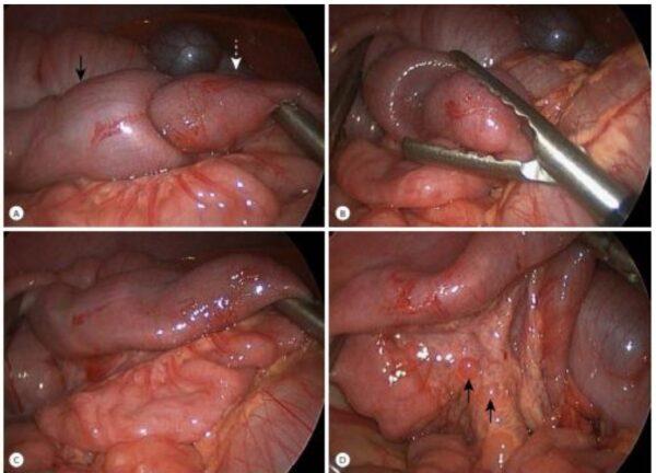 Hình ảnh nội soi xử trí lồng ruột