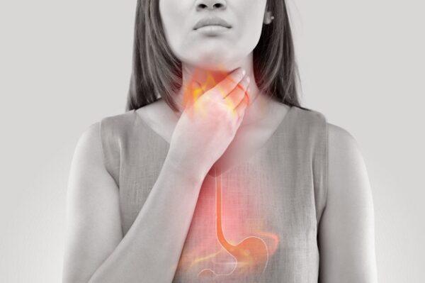 Trào ngược dạ dày thực quản là 1 trong các bệnh tiêu hóa thường gặp