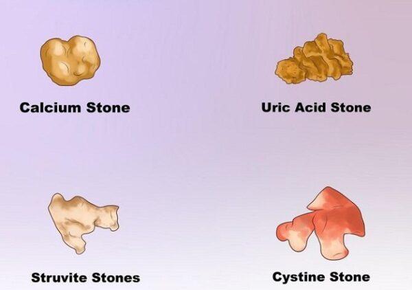 Các loại sỏi tiết niệu phân theo thành phần hóa học