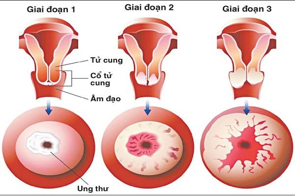 tầm soát ung thư cổ tử cung tại Thu Cúc