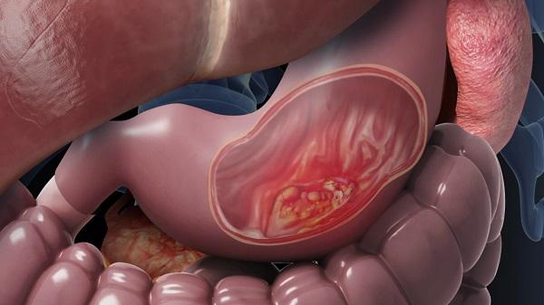 Các bệnh ung thư tiêu hóa có số ca mắc cao nhất Việt Nam