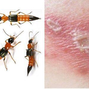 [CẢNH BÁO] Hơn 100 bệnh nhân đến khám mỗi ngày vì viêm da tiếp xúc do kiến ba khoang đốt