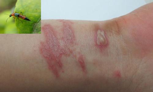 Biểu hiện viêm da tiếp xúc do kiến ba khoang đốt