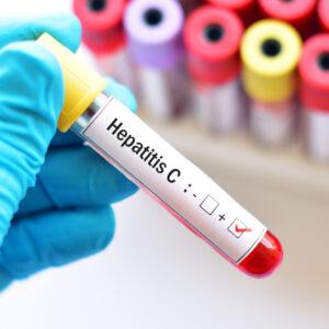Những sai lầm nghiêm trọng khiến bạn mắc phải bệnh viêm gan C