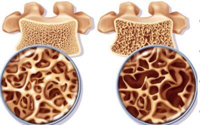 Bệnh loãng xương – dấu hiệu nhận biết, cách điều trị và phòng bệnh