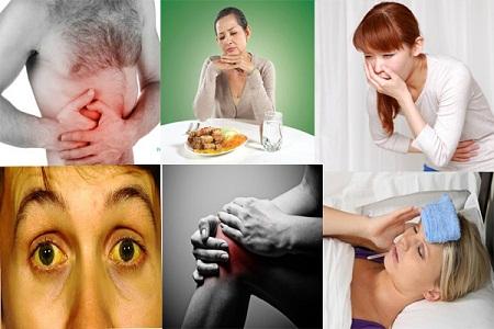 Một số biểu hiện của bệnh xơ gan mất bù bạn cần phải biết
