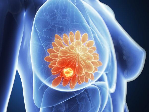 tầm soát ung thư toàn diện