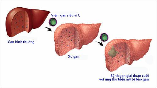 Virus viêm gan C chủ yếu lây truyền qua đường máu. Hiện nay đã có vắc - xin phòng ngừa viêm gan C.