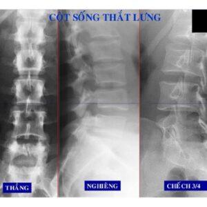 Chụp X quang cột sống thắt lưng phát hiện nhiều bệnh ở cột sống