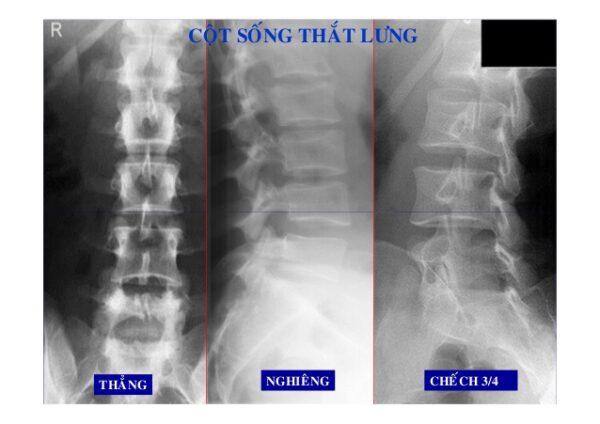 chụp x quang cột sống thắt lưng các tư thế
