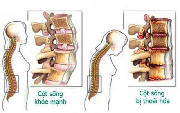 Chụp x quang cột sống thắt lưng hoái hóa cột sống thắt lưng