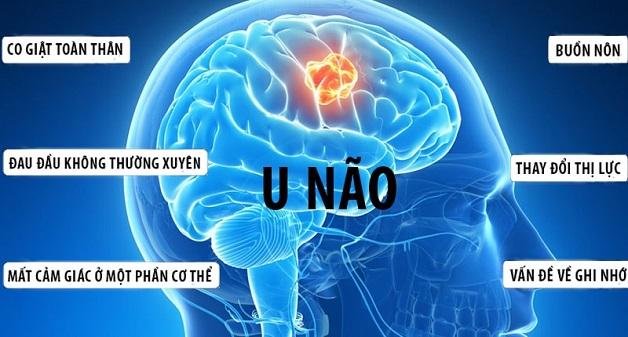 50% bệnh nhân u não có hiện tượng đau đầu mạn tính