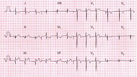 điện tâm đồ khác siêu âm tim