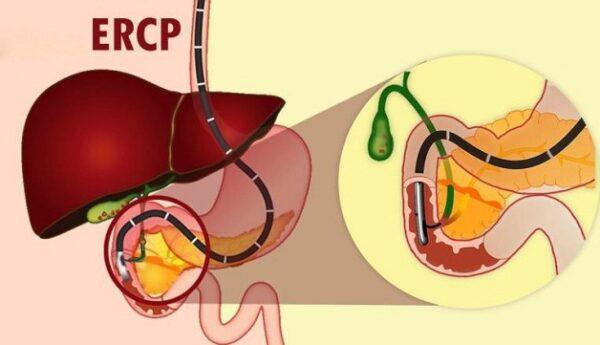 Điều trị sỏi đường mật bằng phương pháp nội soi mật tụy ngược cho đem lại hiệu quả tối ưu