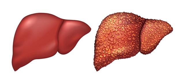 gan nhiễm mỡ là bệnh gì