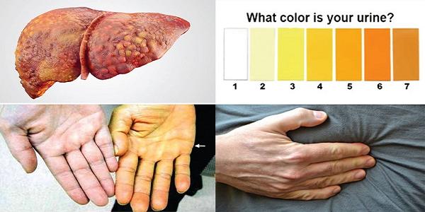 Một vài biểu hiện của bệnh xơ gan giai đoạn cuối
