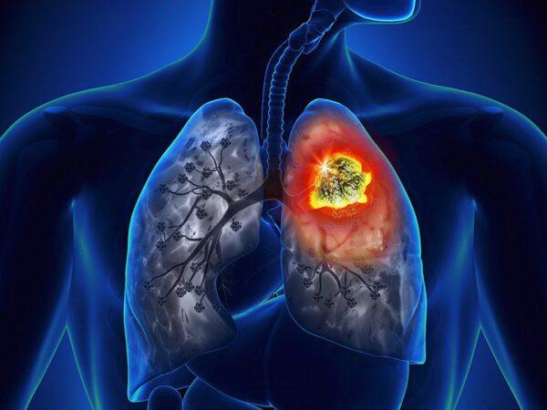 Gói tầm soát ung thư phổi có nên không