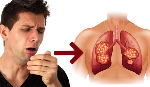 Gói tầm soát ung thư phổi có tốt không